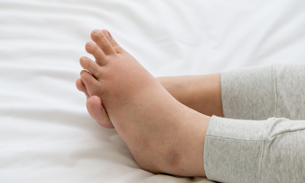 Cure for edema